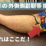膝の外側が痛い!そんなあなたは膝の『外側靭帯』が損傷しているかも!