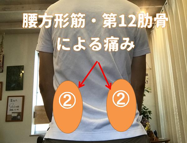 腰方形筋・第12肋骨が原因
