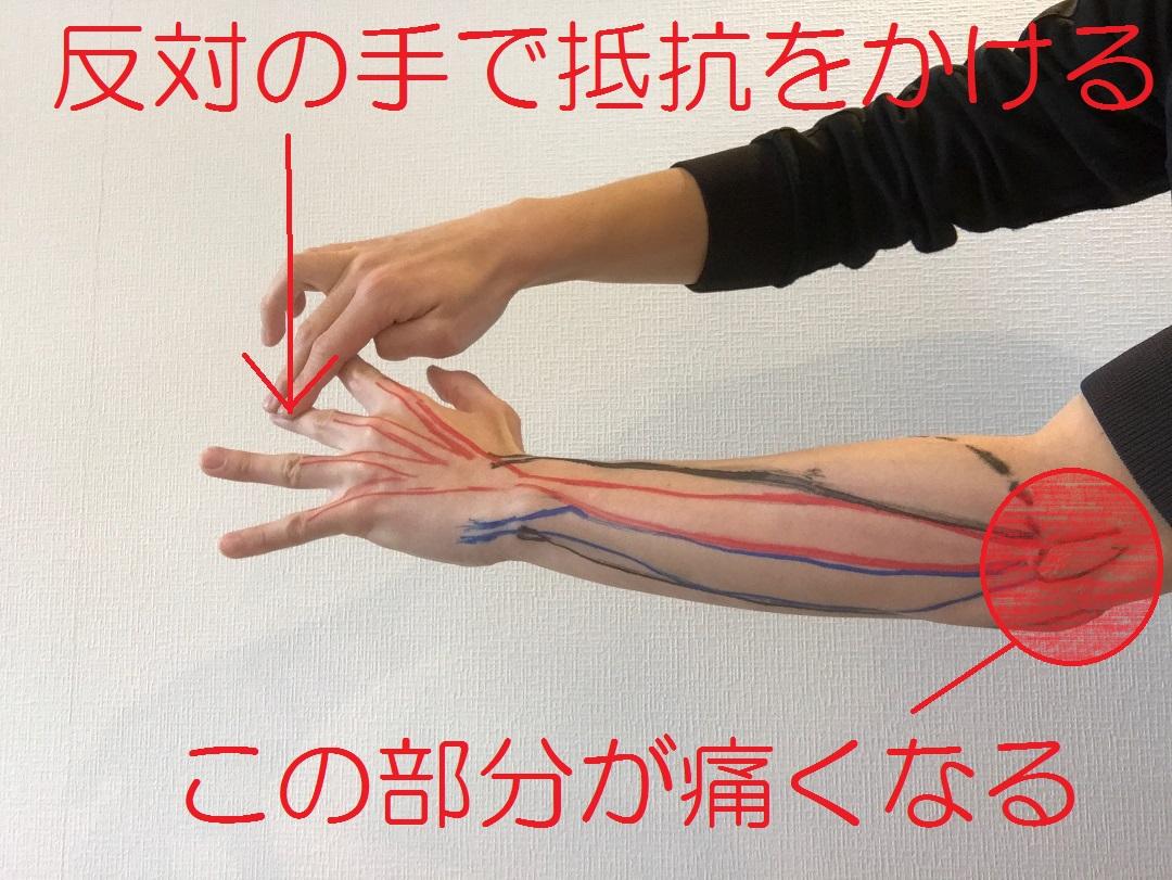 肘 治療 テニス