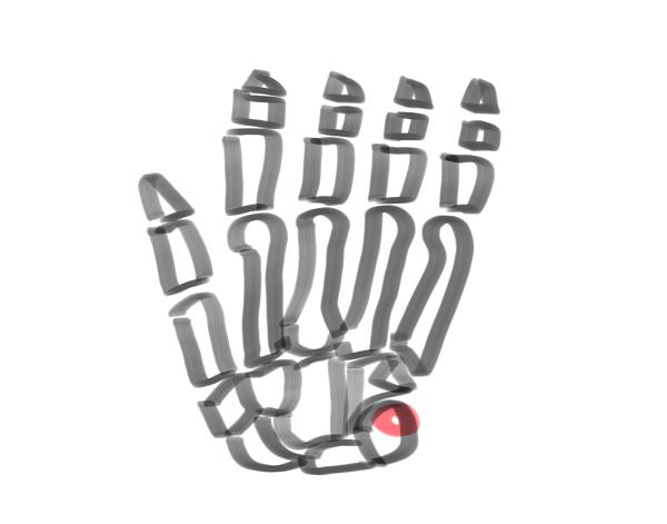 手の骨全体の絵