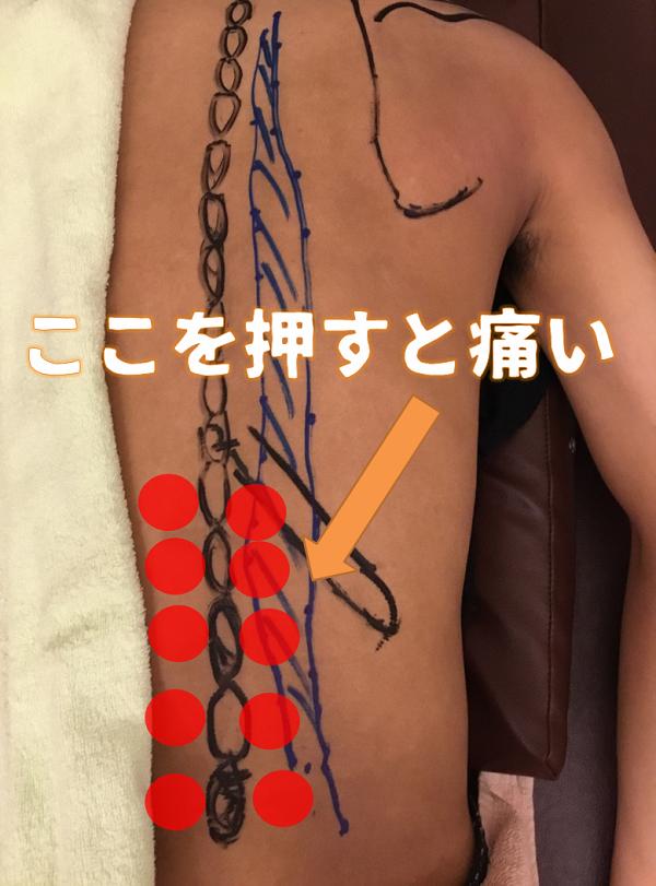 椎間関節の検査