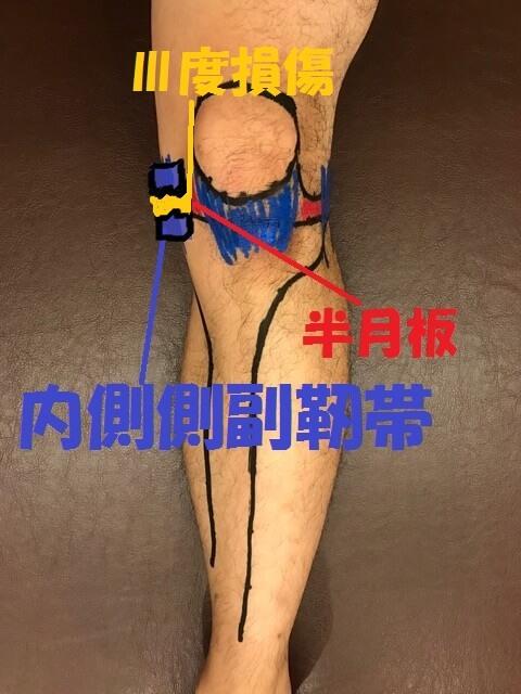 内側側副靭帯Ⅲ度損傷
