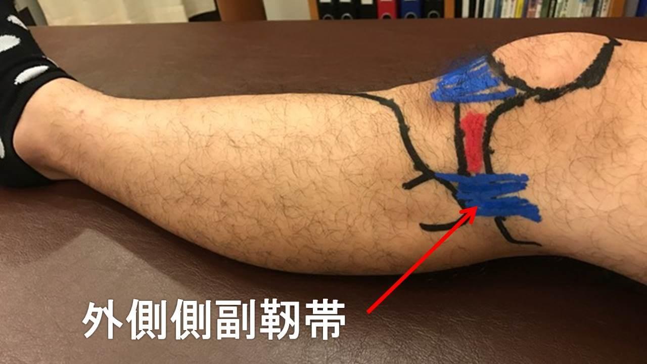 膝外側側副靭帯の場所