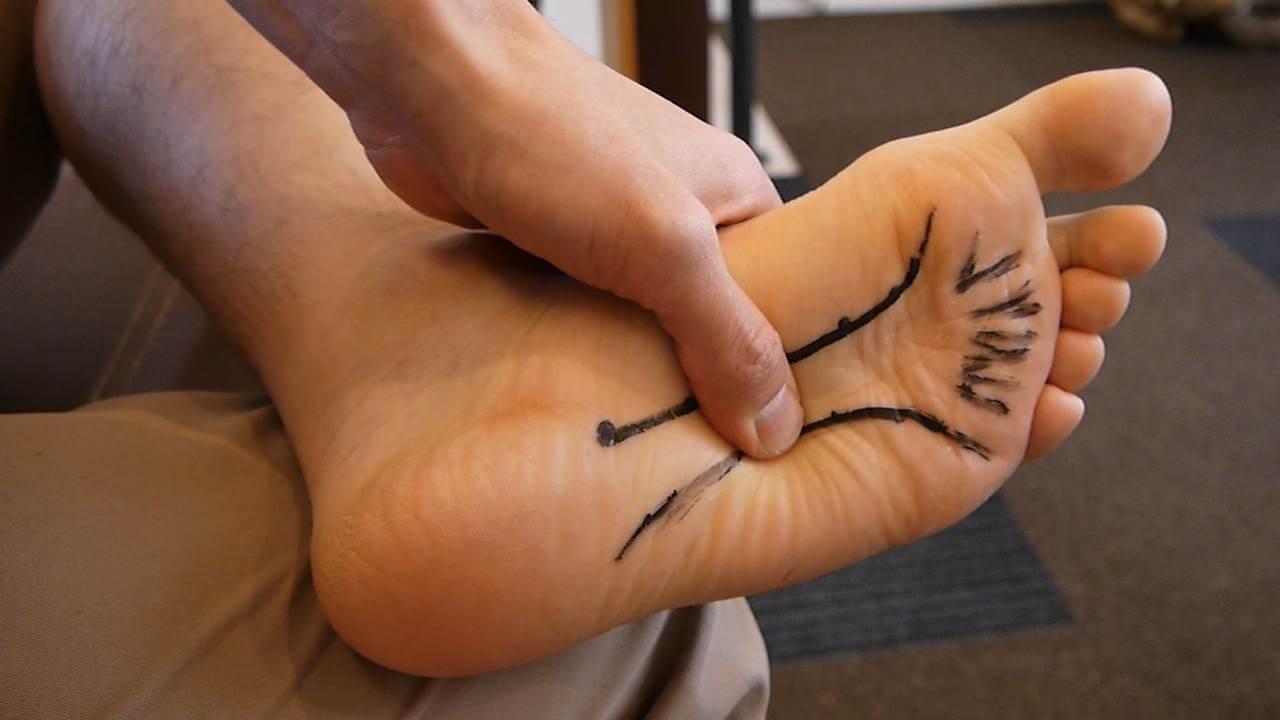 足底筋膜炎中腹部分