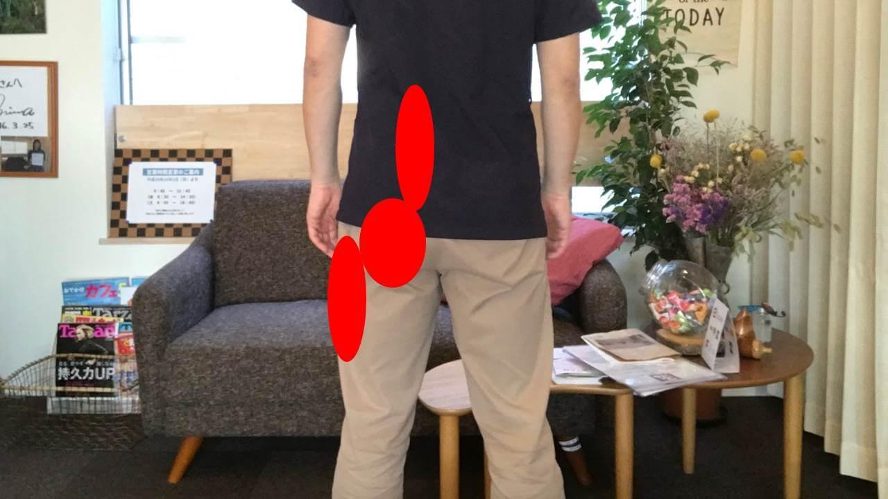 第1仙椎の脊髄神経後枝内側枝に刺激