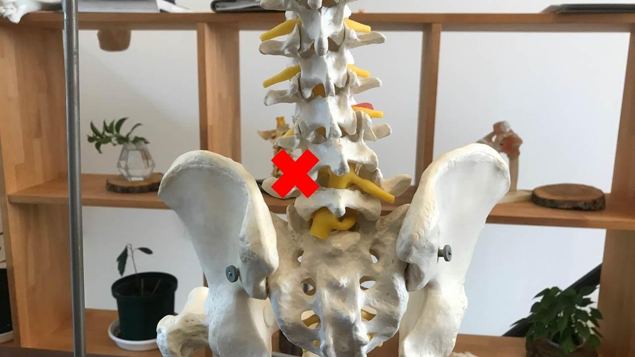 椎間関節の痛み