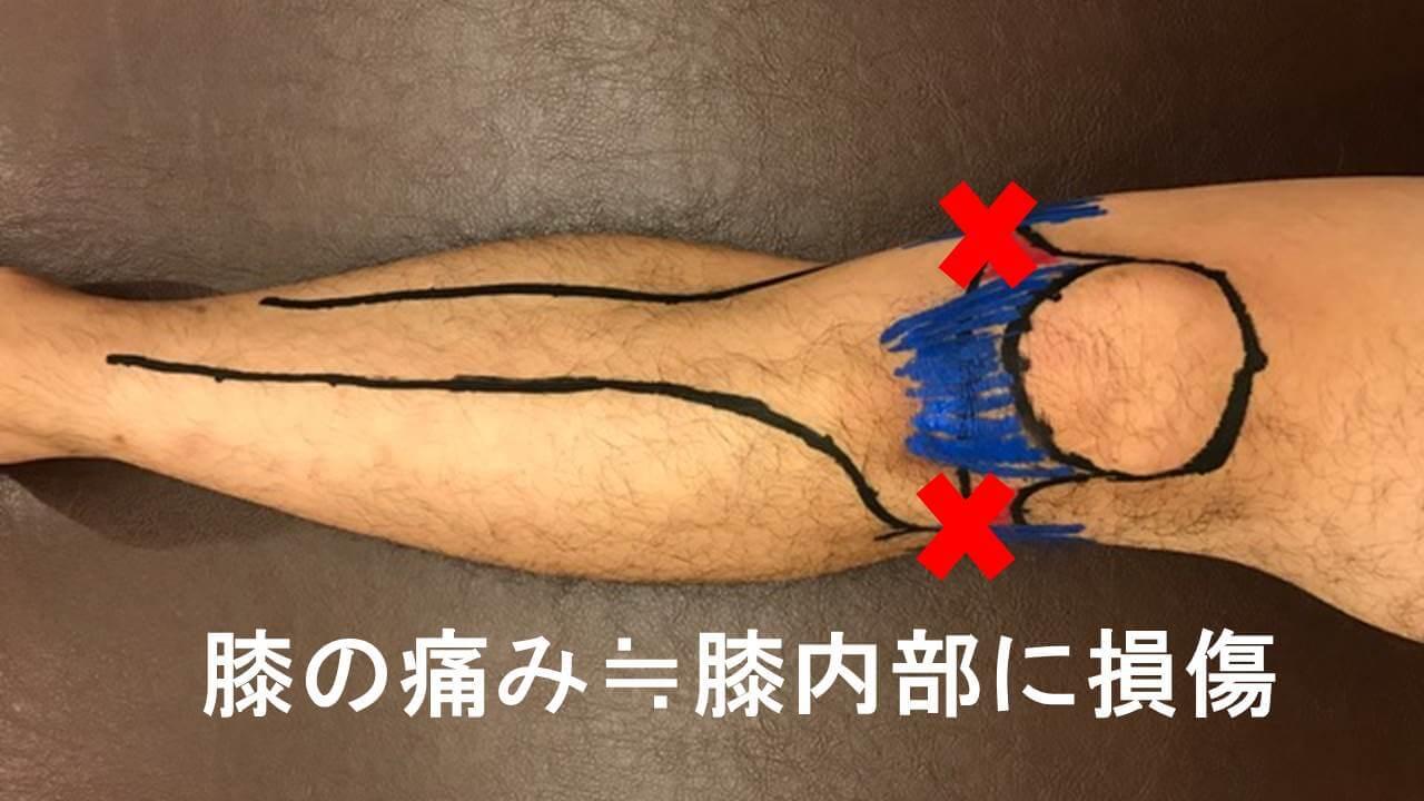 膝内部の損傷