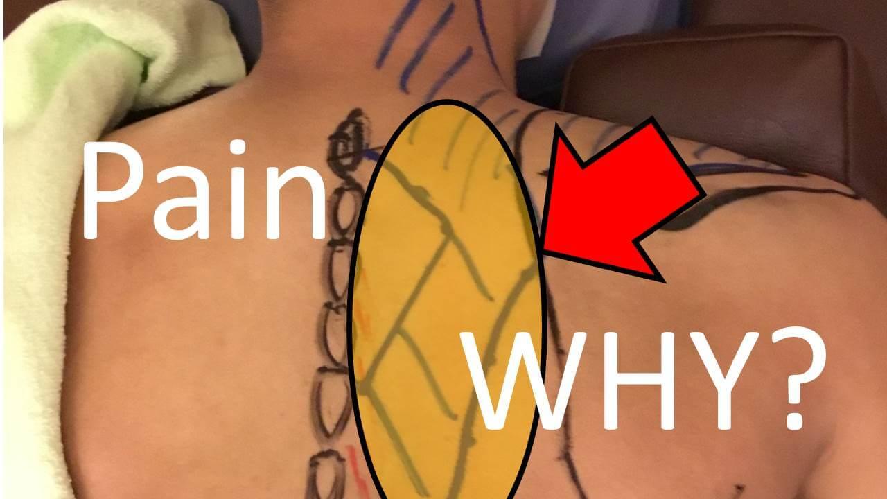 背中の痛みアイキャッチ