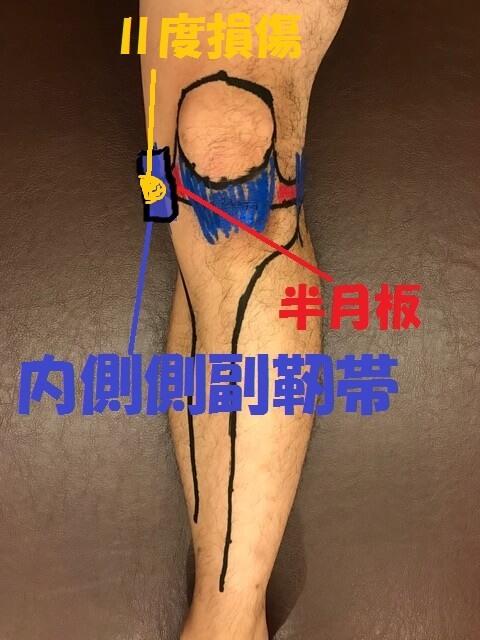 内側側副靭帯Ⅱ度損傷