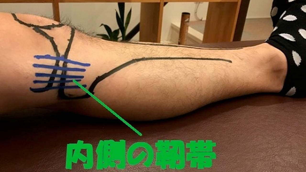 内側側副靭帯損傷の検査法