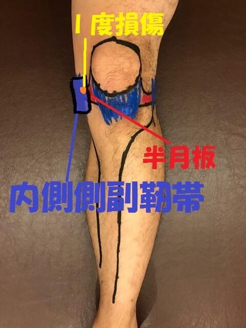 内側側副靭帯Ⅰ度損傷