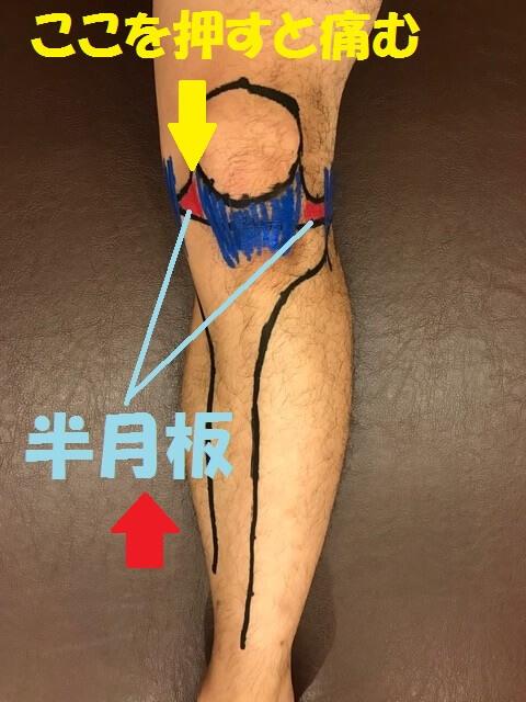 内側半月板損傷の検査法