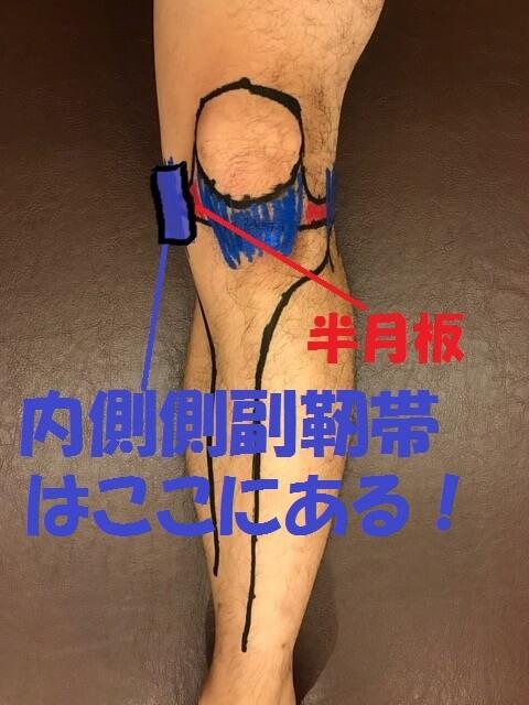 内側側副靭帯はここ