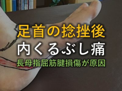 足首の捻挫後の内くるぶしの痛みの原因は長母指屈筋腱アイキャッチ