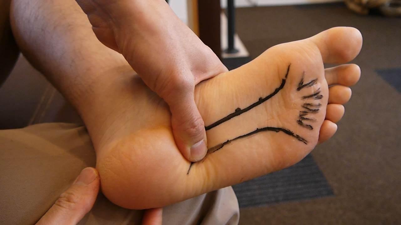 足底筋膜炎踵骨部分