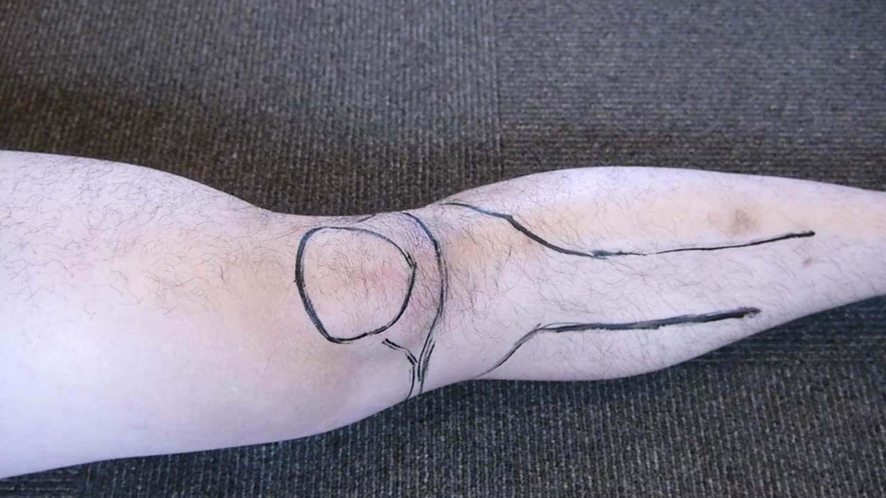 膝のトレース