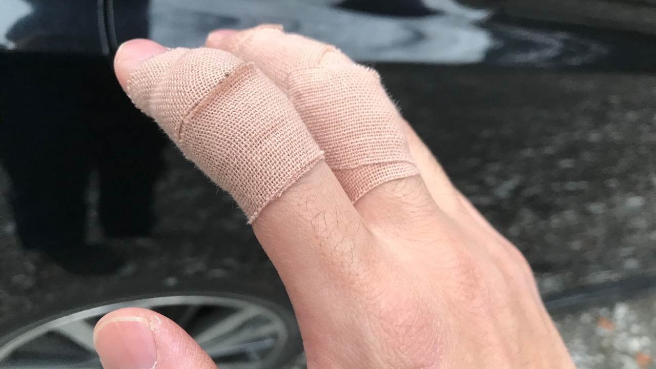 親指の怪我