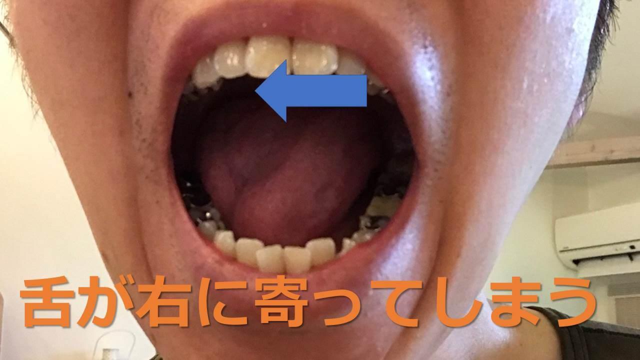 舌が右に寄る