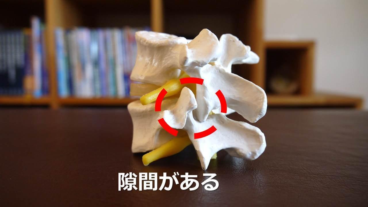 通常の椎間関節