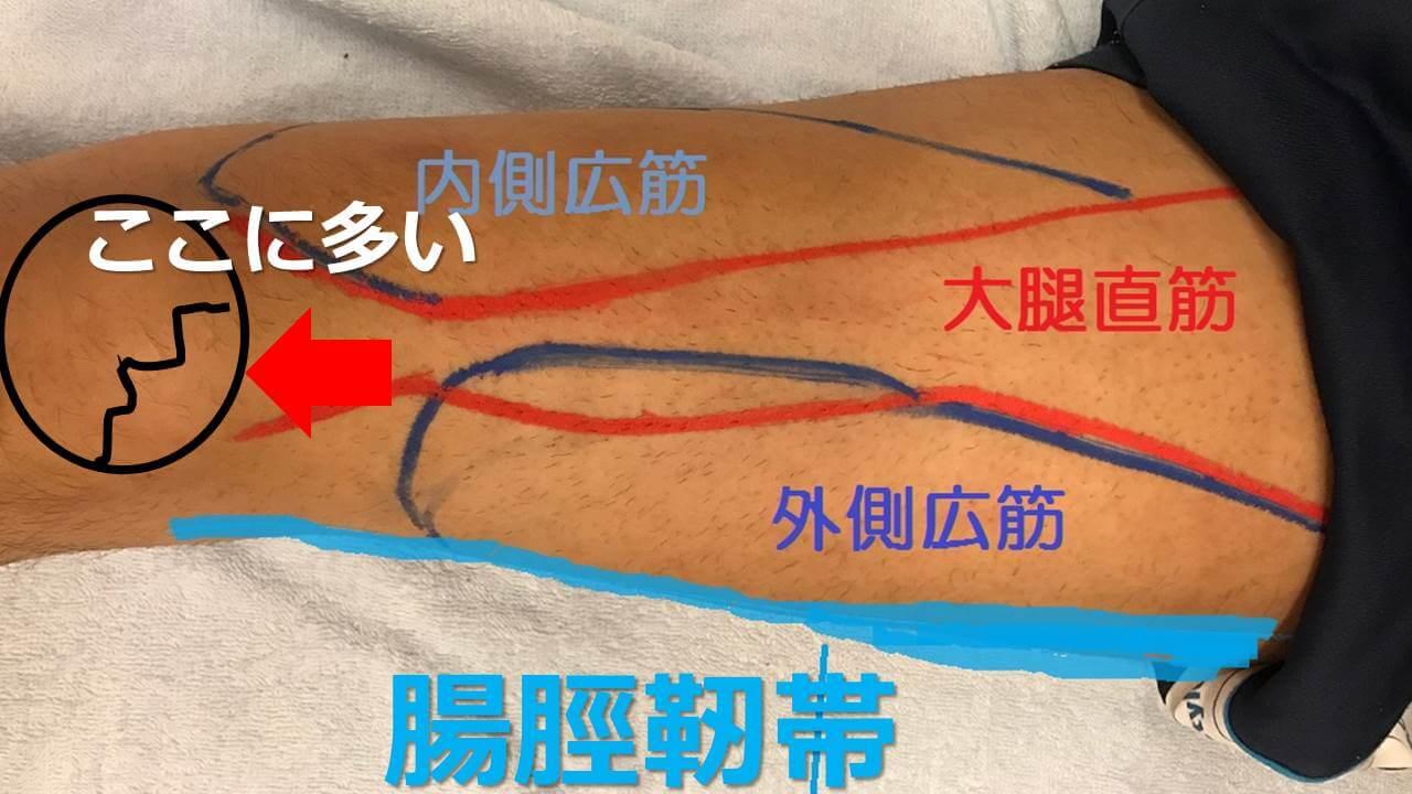二分膝蓋骨の病態