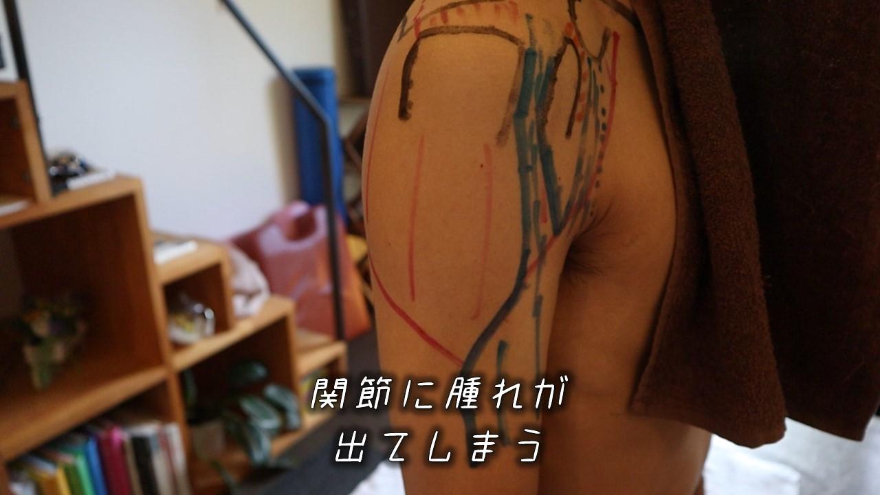 肩が全体的に腫れる