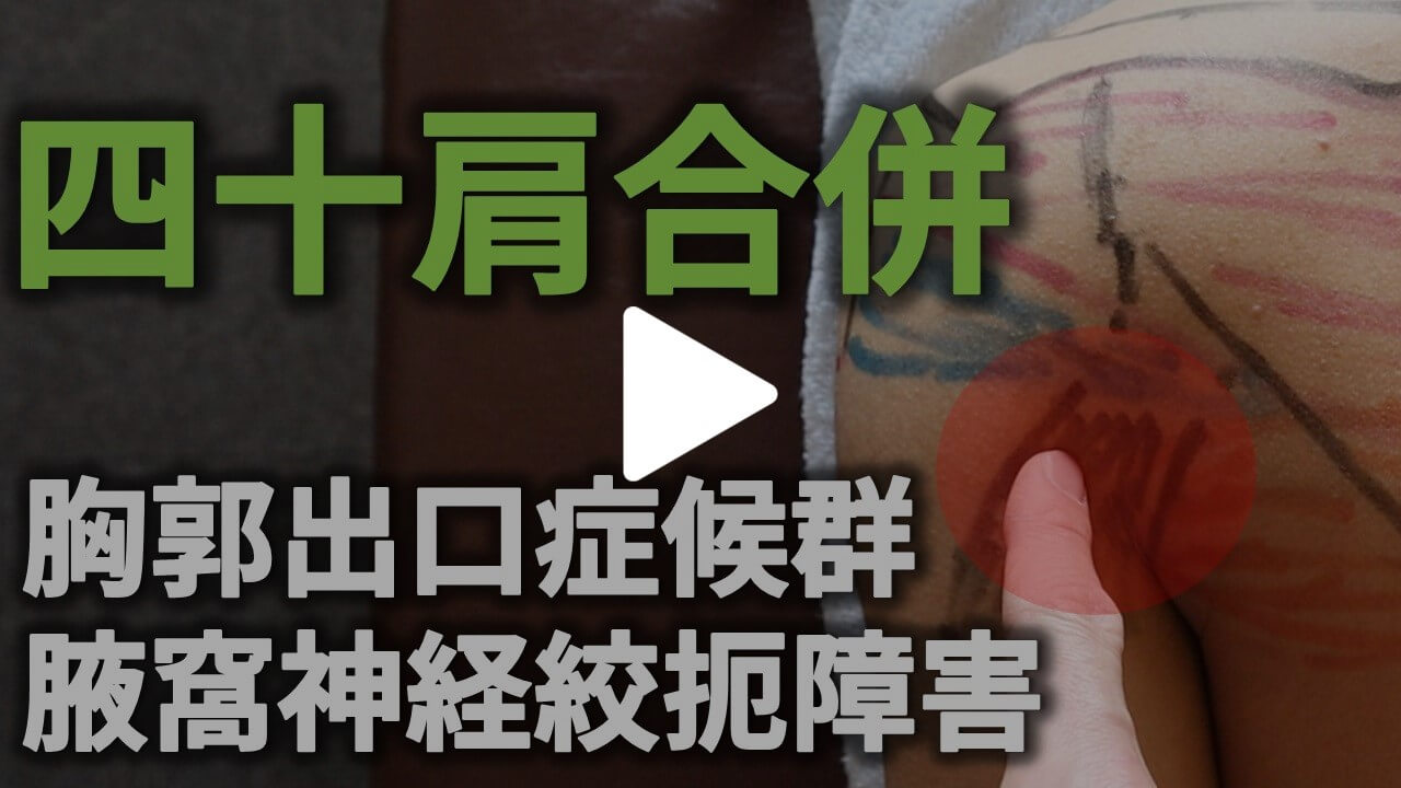 四十肩合併胸郭出口症候群のYouTube