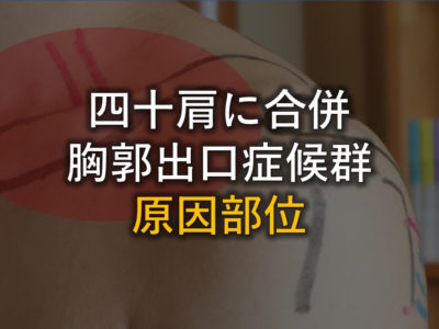 胸郭出口症候群の原因部位アイキャッチ