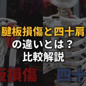 四十肩・腱板損傷の比較アイキャッチ