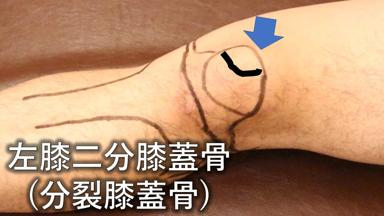 二分膝蓋骨(分裂膝蓋骨)