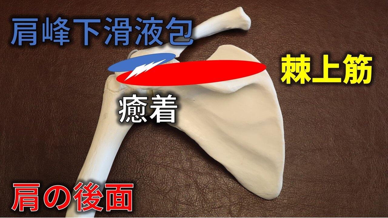 肩峰下滑液包と腱板の癒着